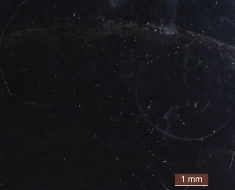 FB発生停止3日目1mm